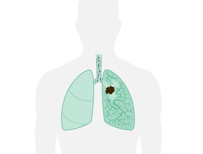 cancer maligne du poumon mozaic ferges